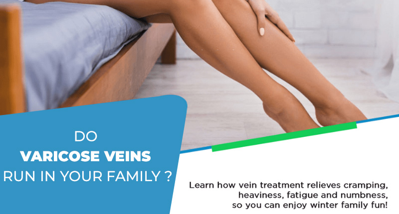 Do Varicose Veins Run In Your Family